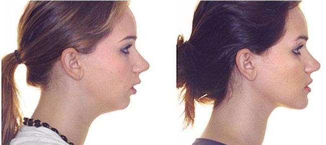 Дистальный прикус - передний наклон головы