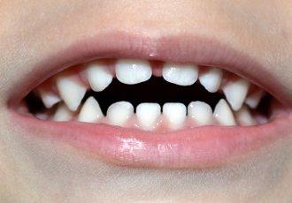 Неправильный прикус у ребенка: фото, причины, лечение