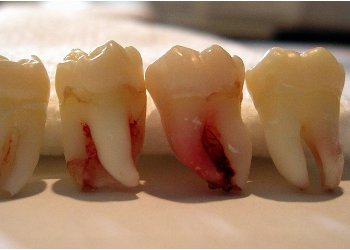 Сколько зубов мудрости может вырасти у человека