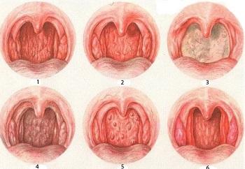 хронический стоматит