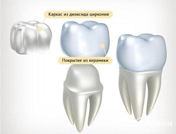 коронки для зубов виды