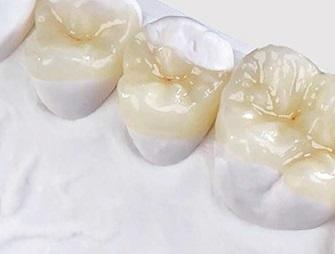 приемущества зубных вкладок