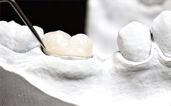 зубная вкладка керамика