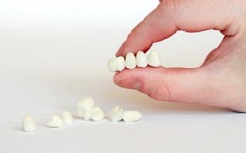 зубная вкладка виды