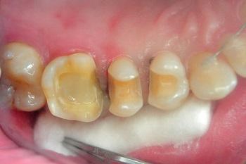 установка зубных вкладок